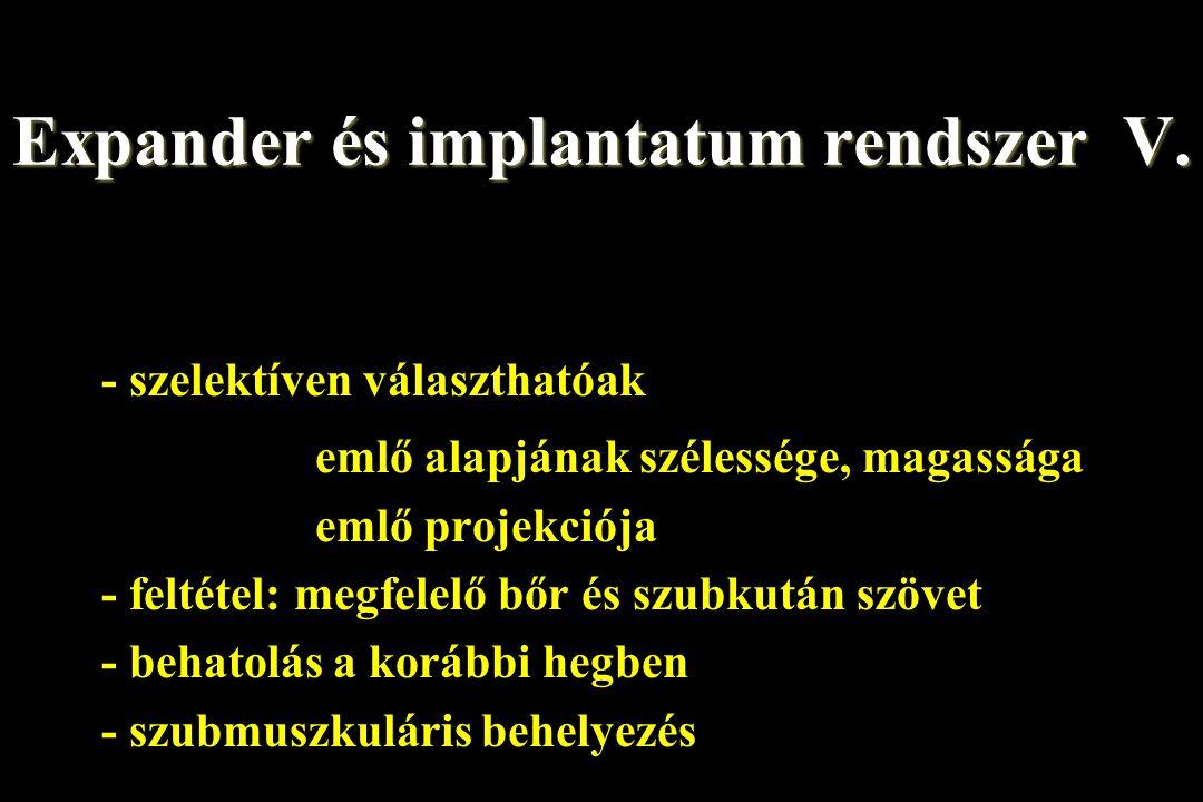 Expander és implantatum rendszer V.