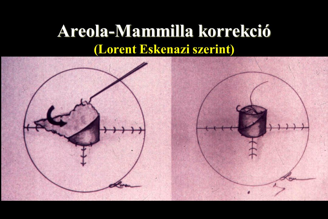 Areola-Mammilla korrekció (Lorent Eskenazi szerint)