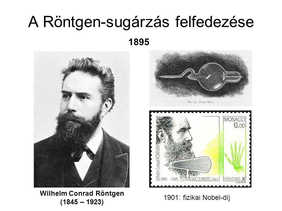 A Röntgen-sugárzás felfedezése