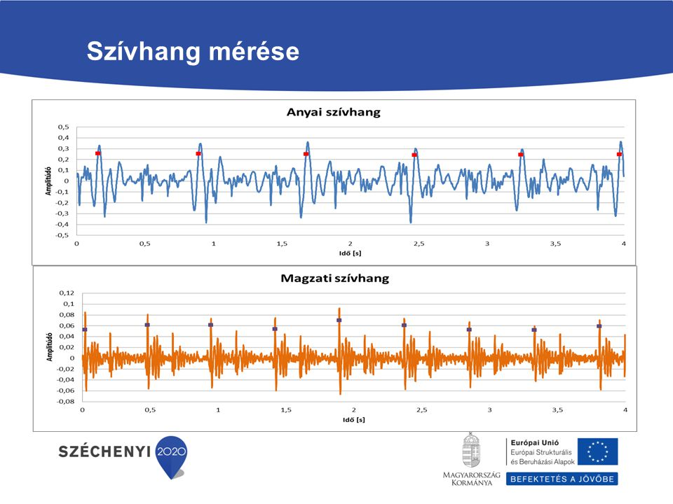 Szívhang mérése