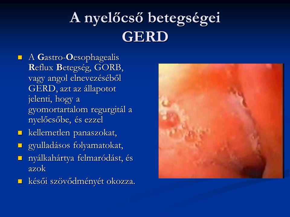 A nyelőcső betegségei GERD