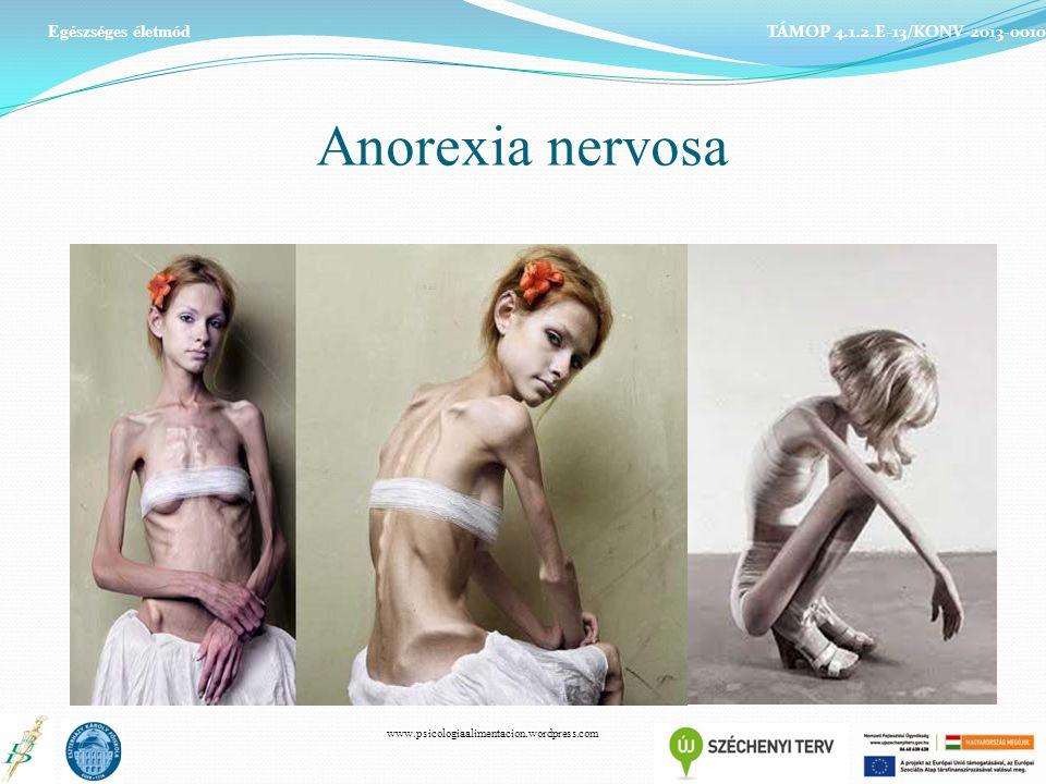 Anorexia nervosa Egészséges életmód TÁMOP 4.1.2.E-13/KONV-2013-0010