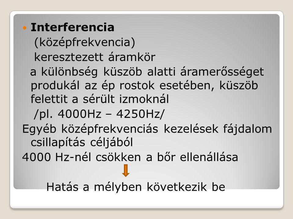 Interferencia (középfrekvencia) keresztezett áramkör.
