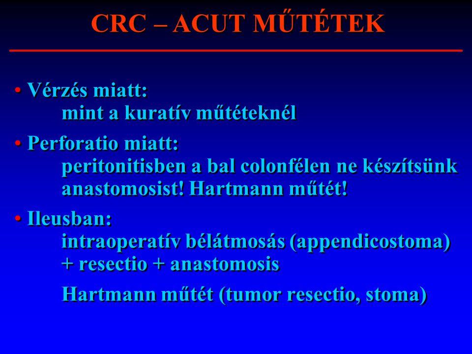 CRC – ACUT MŰTÉTEK Vérzés miatt: mint a kuratív műtéteknél