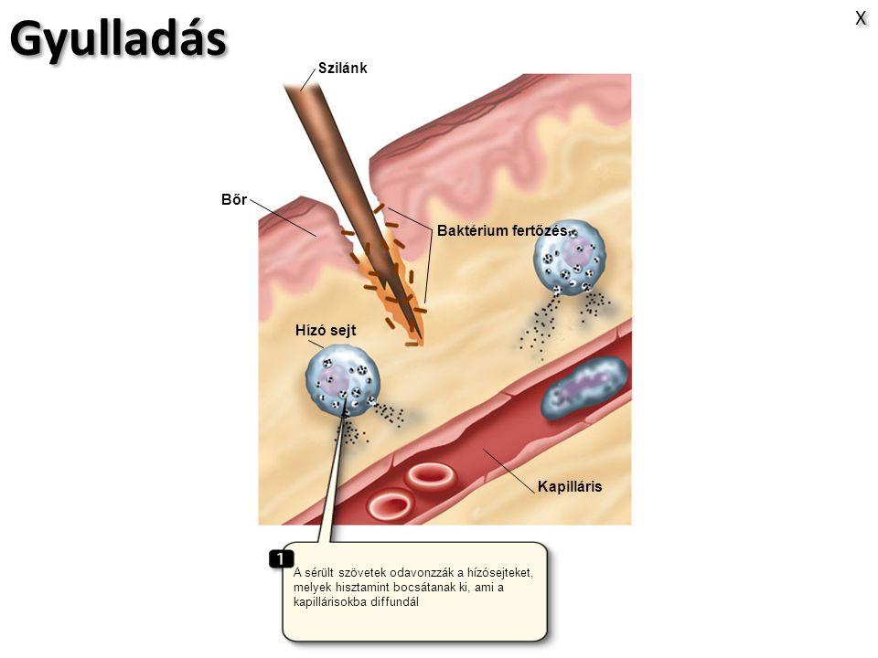 Gyulladás X Szilánk Bőr Baktérium fertőzés Hízó sejt Kapilláris