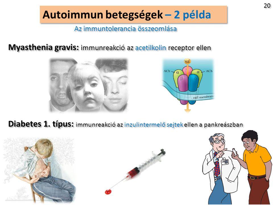 Autoimmun betegségek – 2 példa