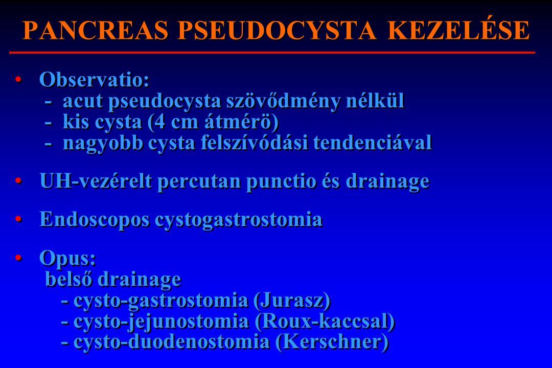 PANCREAS PSEUDOCYSTA KEZELÉSE