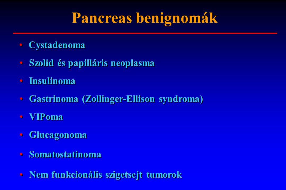 Pancreas benignomák Cystadenoma Szolid és papilláris neoplasma