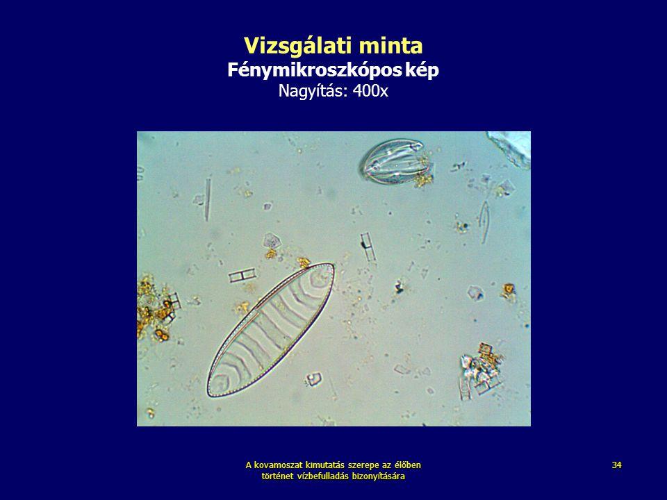 Vizsgálati minta Fénymikroszkópos kép Nagyítás: 400x