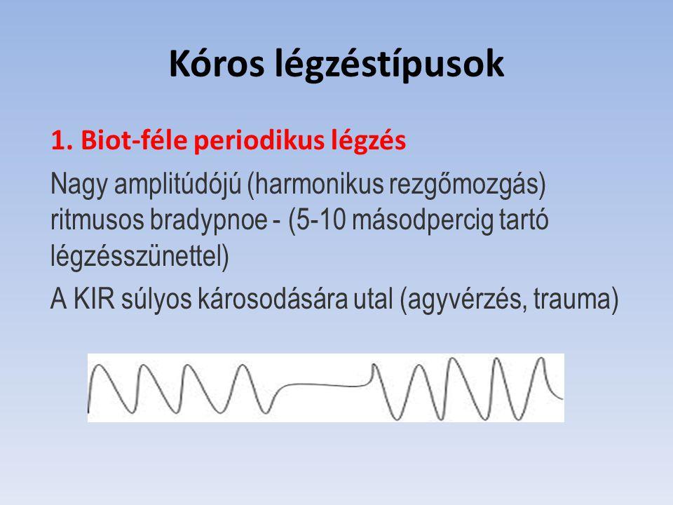 Kóros légzéstípusok 1. Biot-féle periodikus légzés
