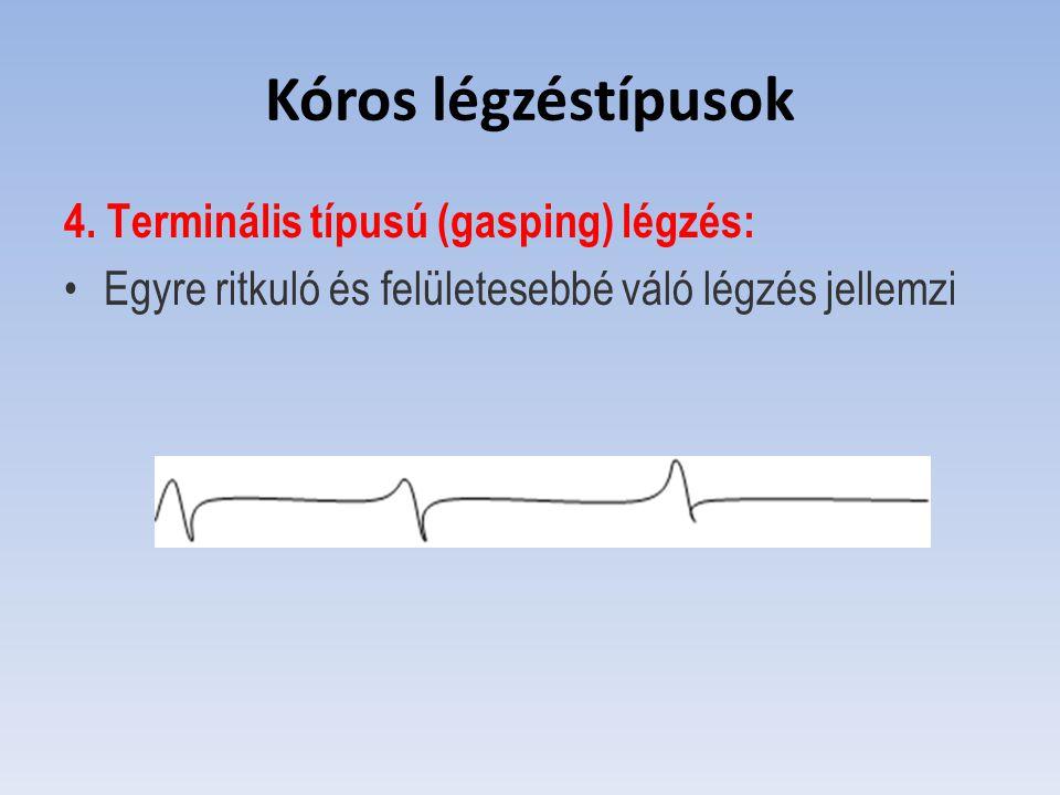 Kóros légzéstípusok 4. Terminális típusú (gasping) légzés: