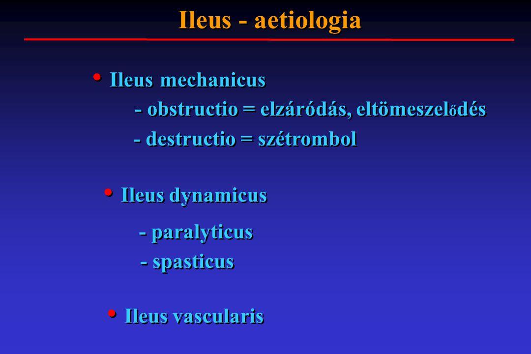 Ileus mechanicus Ileus dynamicus Ileus vascularis Ileus - aetiologia