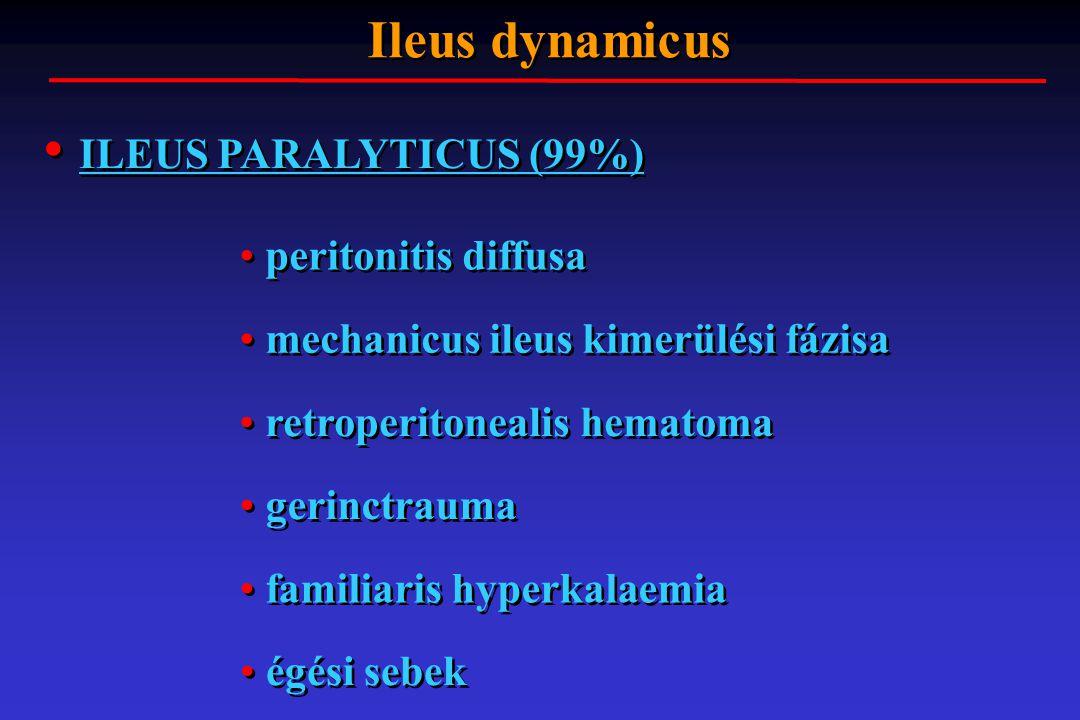 ILEUS PARALYTICUS (99%)