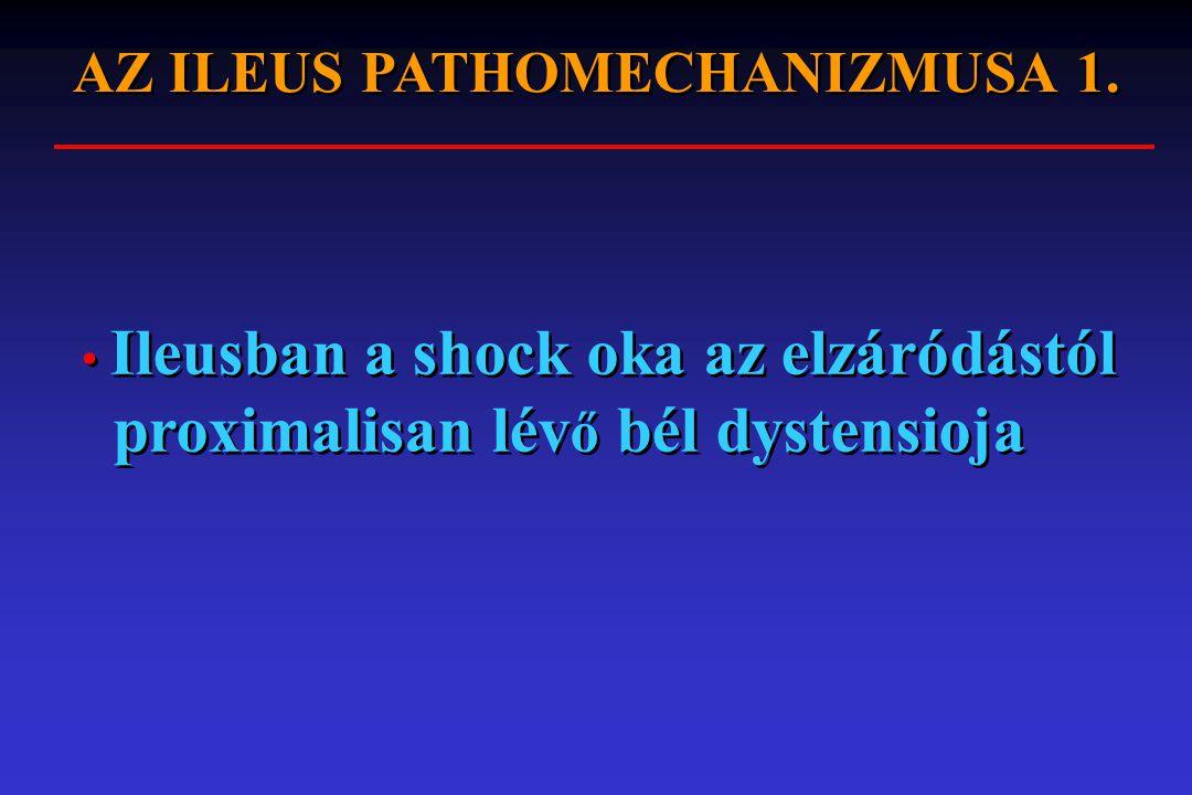 AZ ILEUS PATHOMECHANIZMUSA 1.