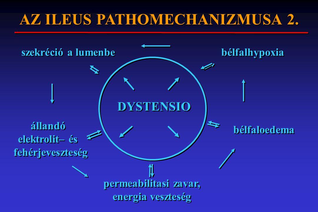 AZ ILEUS PATHOMECHANIZMUSA 2.