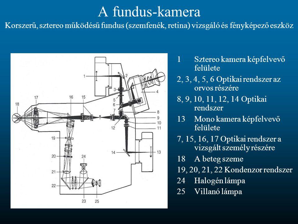 A fundus-kamera Korszerű, sztereo működésű fundus (szemfenék, retina) vizsgáló és fényképező eszköz