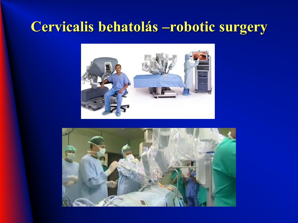 Cervicalis behatolás –robotic surgery