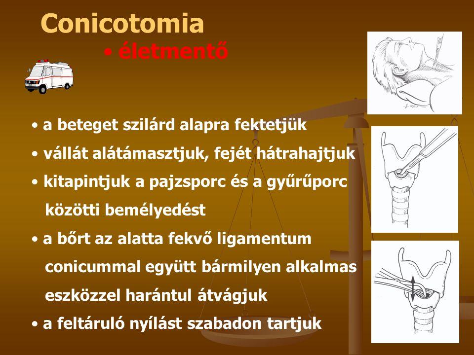 Conicotomia életmentő a beteget szilárd alapra fektetjük