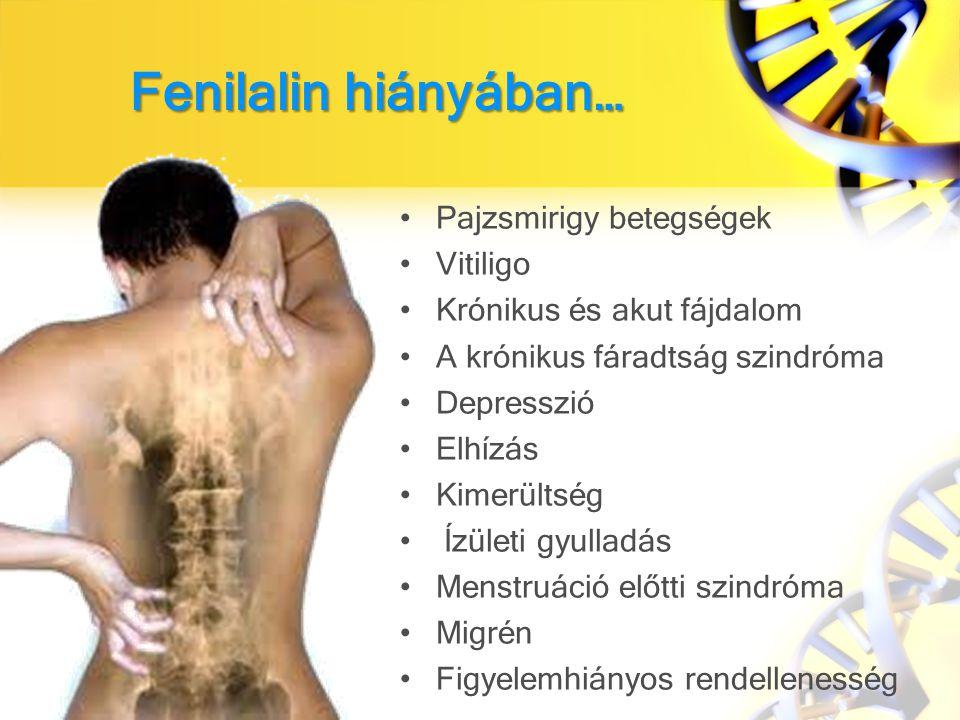 Fenilalin hiányában… Pajzsmirigy betegségek Vitiligo