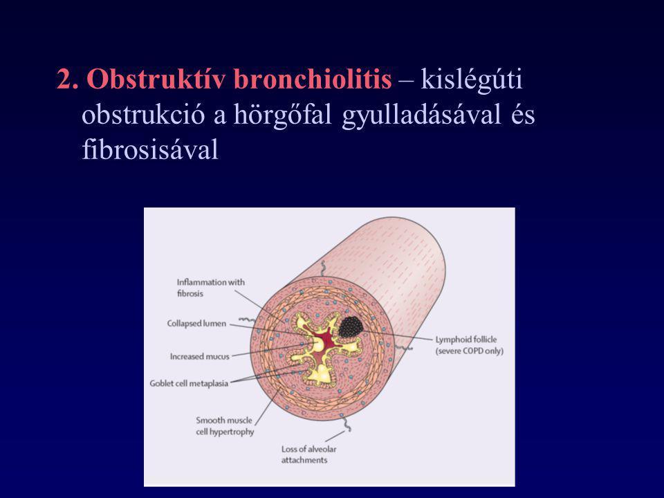2. Obstruktív bronchiolitis – kislégúti obstrukció a hörgőfal gyulladásával és fibrosisával