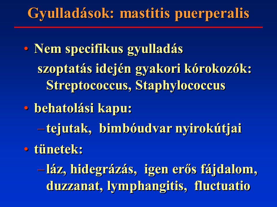 Gyulladások: mastitis puerperalis