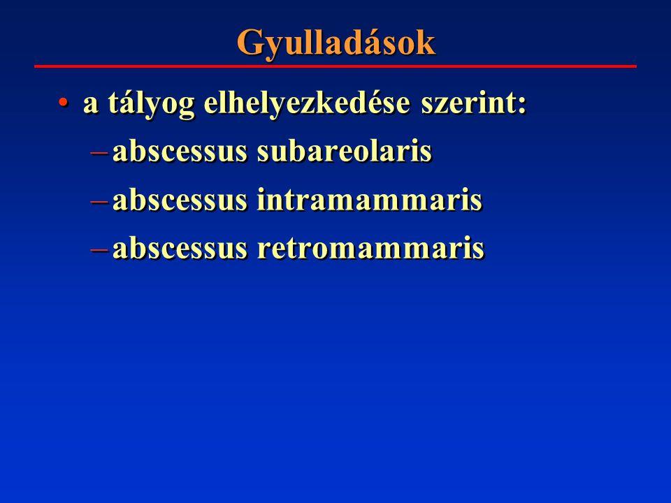 Gyulladások a tályog elhelyezkedése szerint: abscessus subareolaris