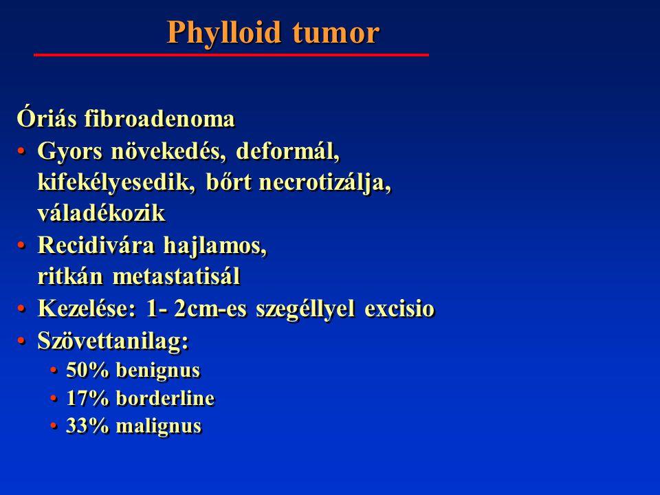 Phylloid tumor Óriás fibroadenoma