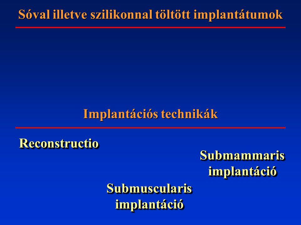 Implantációs technikák