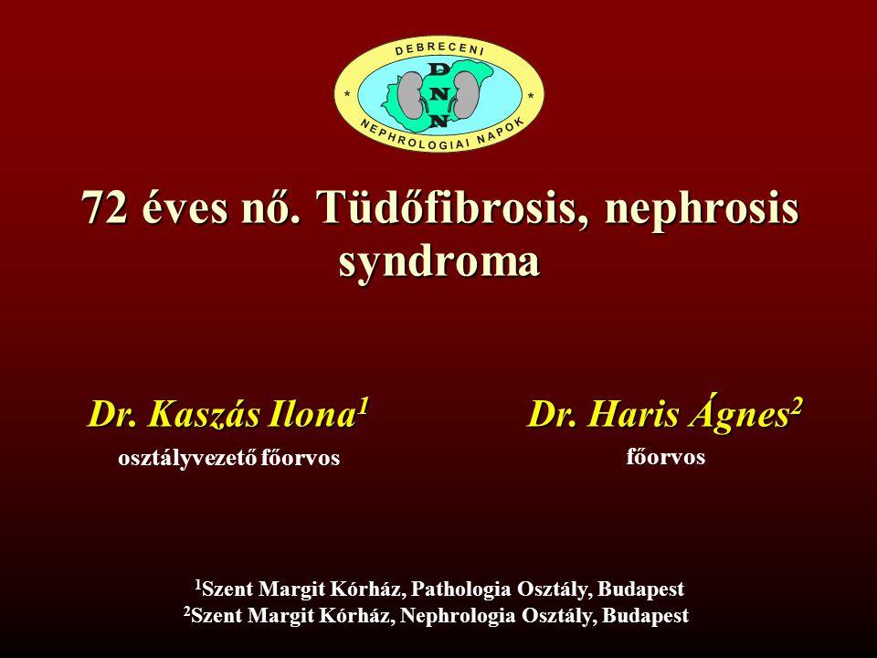 72 éves nő. Tüdőfibrosis, nephrosis syndroma