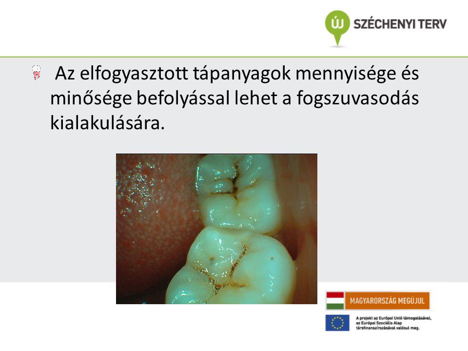 Az elfogyasztott tápanyagok mennyisége és minősége befolyással lehet a fogszuvasodás kialakulására.