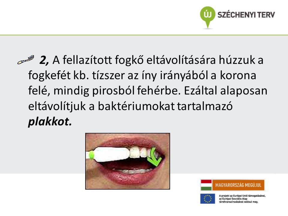 2, A fellazított fogkő eltávolítására húzzuk a fogkefét kb