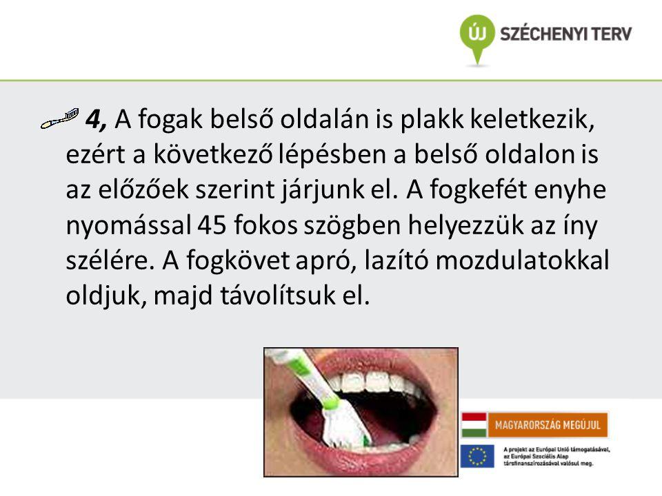 4, A fogak belső oldalán is plakk keletkezik, ezért a következő lépésben a belső oldalon is az előzőek szerint járjunk el.