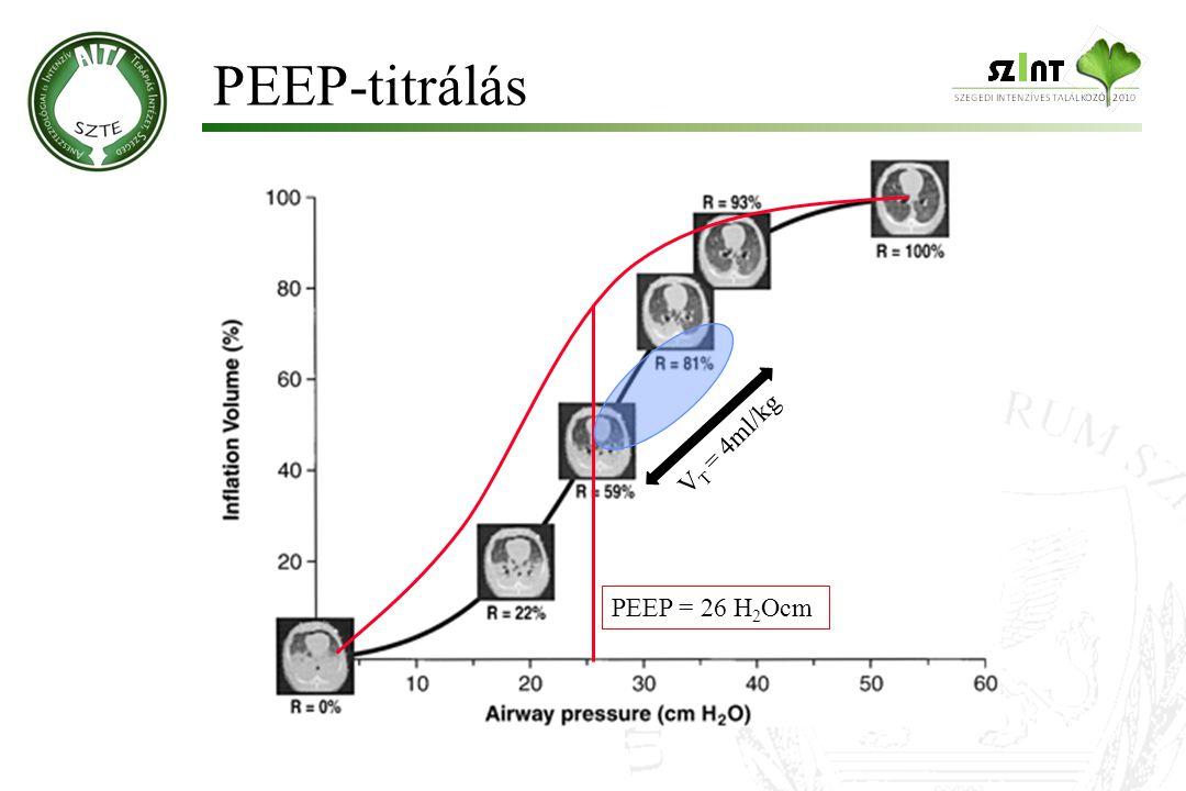 PEEP-titrálás VT = 4ml/kg PEEP = 26 H2Ocm