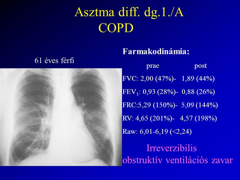 Asztma diff. dg.1./A COPD Farmakodinámia: 61 éves férfi prae post