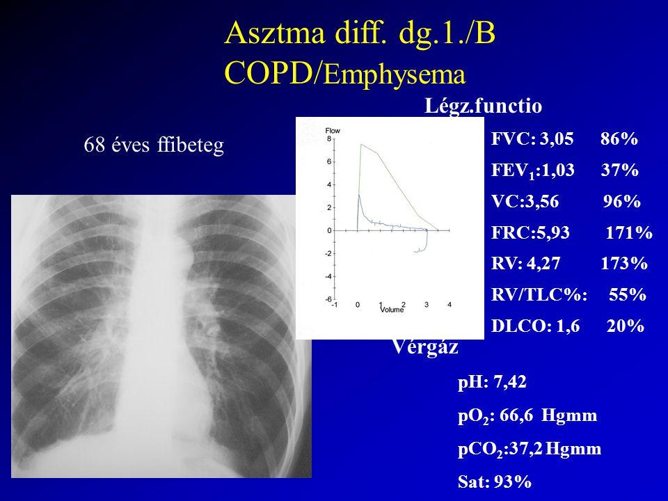 Asztma diff. dg.1./B COPD/Emphysema Légz.functio 68 éves ffibeteg