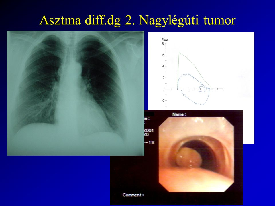Asztma diff.dg 2. Nagylégúti tumor