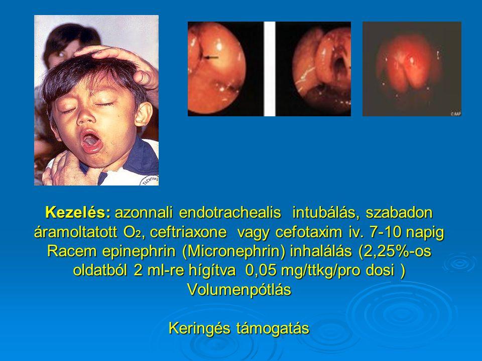 Kezelés: azonnali endotrachealis intubálás, szabadon áramoltatott O2, ceftriaxone vagy cefotaxim iv.