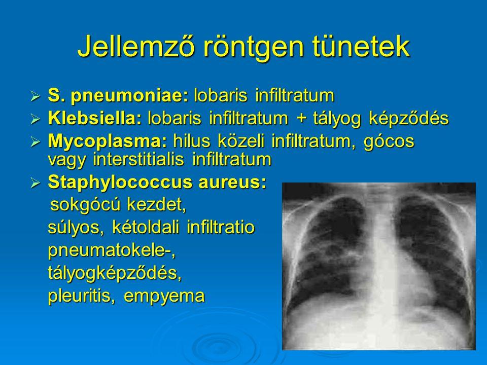 Jellemző röntgen tünetek