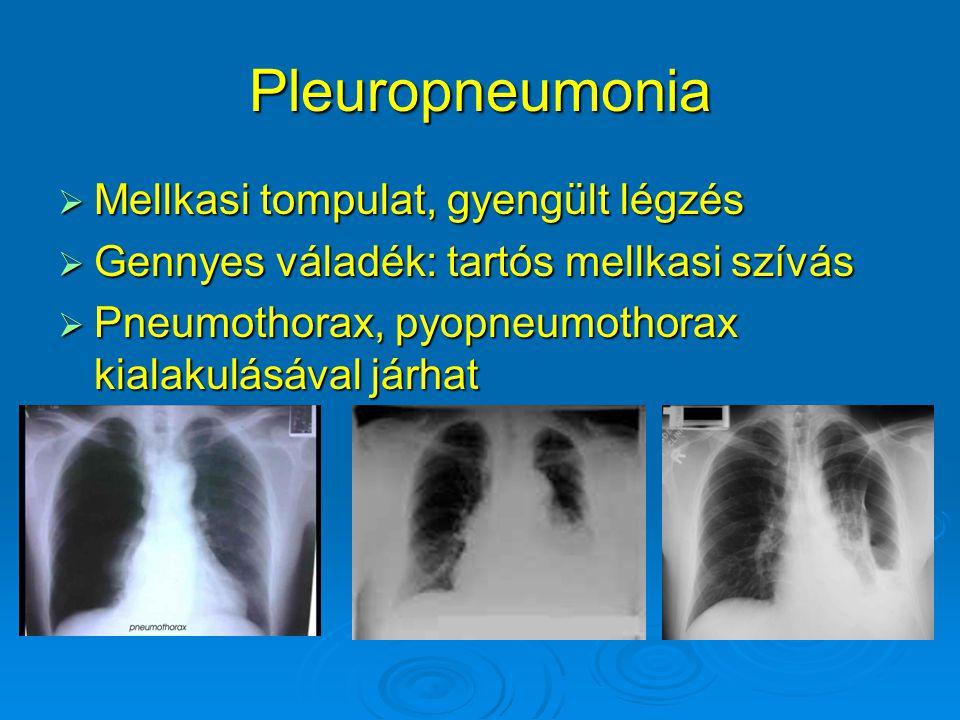 Pleuropneumonia Mellkasi tompulat, gyengült légzés