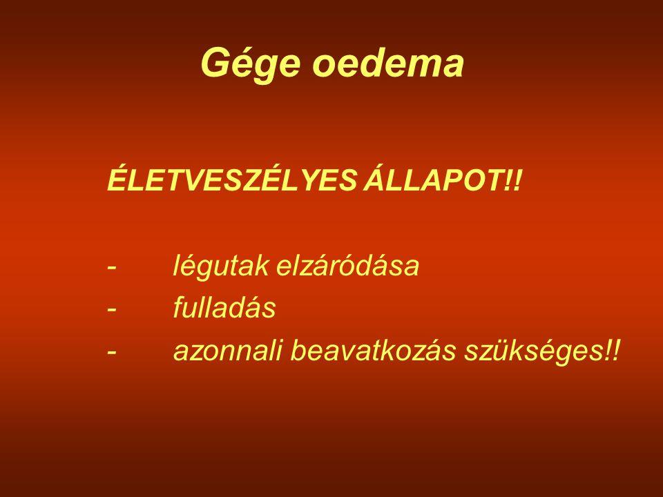 Gége oedema ÉLETVESZÉLYES ÁLLAPOT!! - légutak elzáródása - fulladás