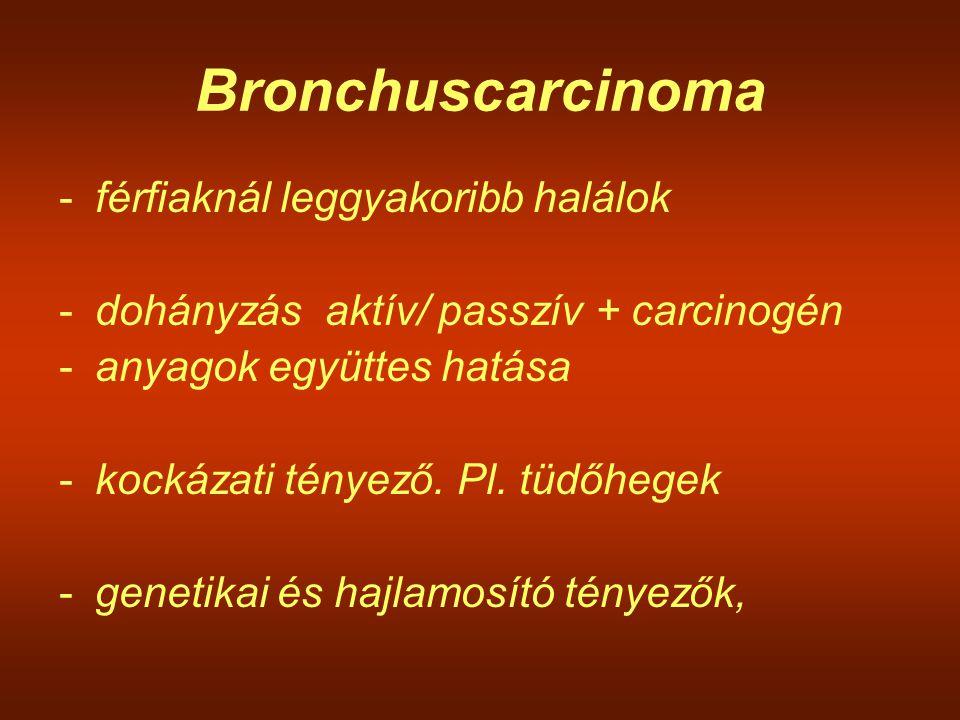 Bronchuscarcinoma férfiaknál leggyakoribb halálok