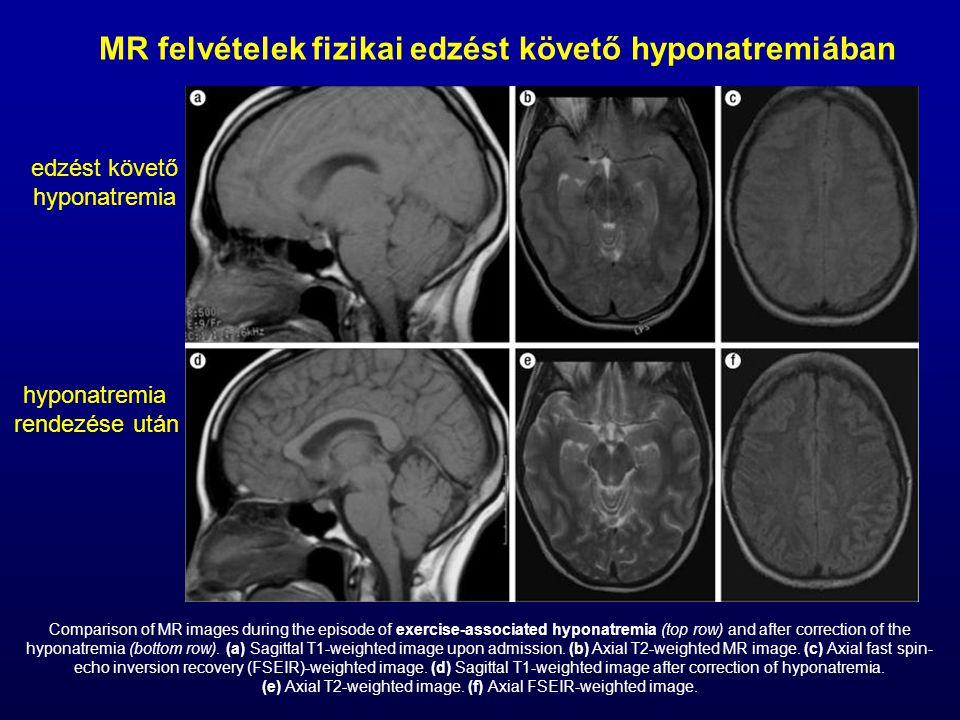 MR felvételek fizikai edzést követő hyponatremiában