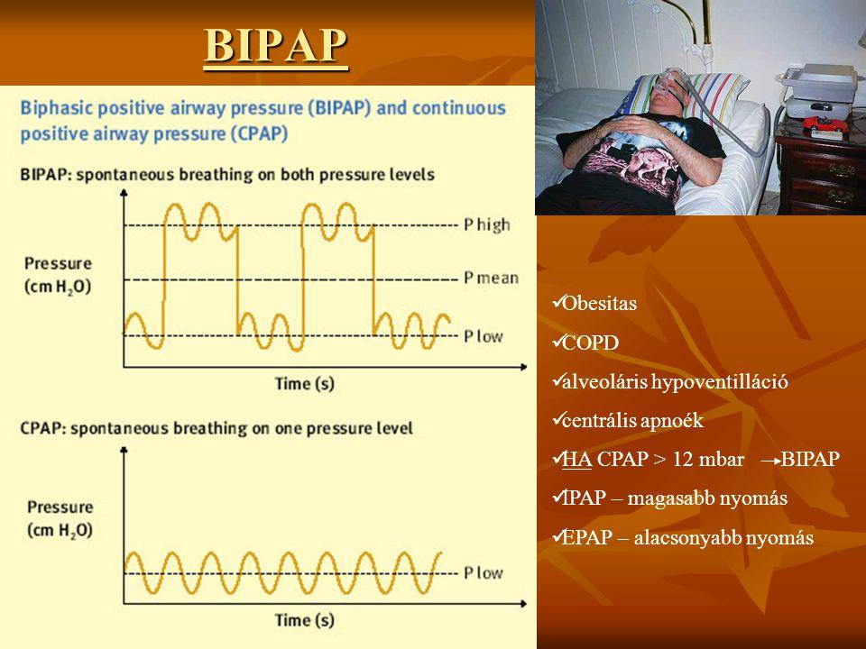 BIPAP Obesitas COPD alveoláris hypoventilláció centrális apnoék
