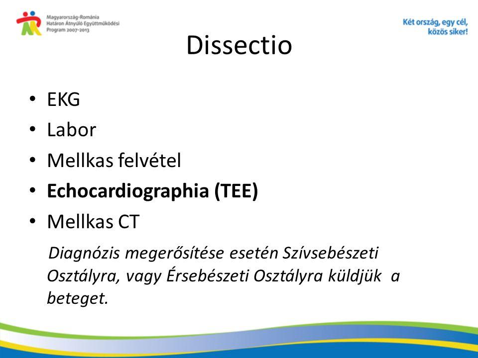 Dissectio EKG Labor Mellkas felvétel Echocardiographia (TEE)