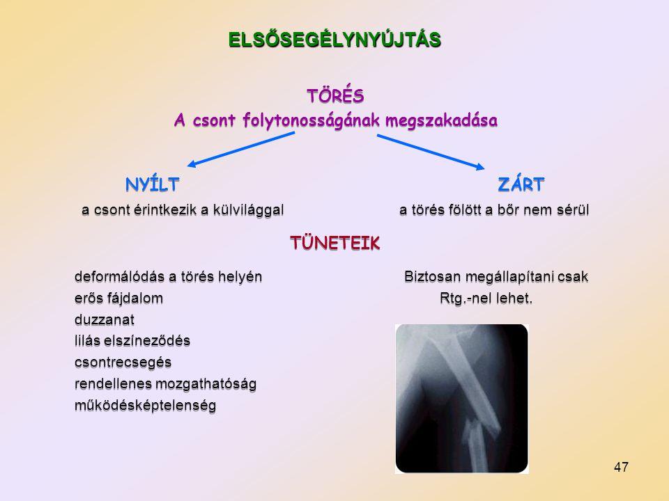 A csont folytonosságának megszakadása