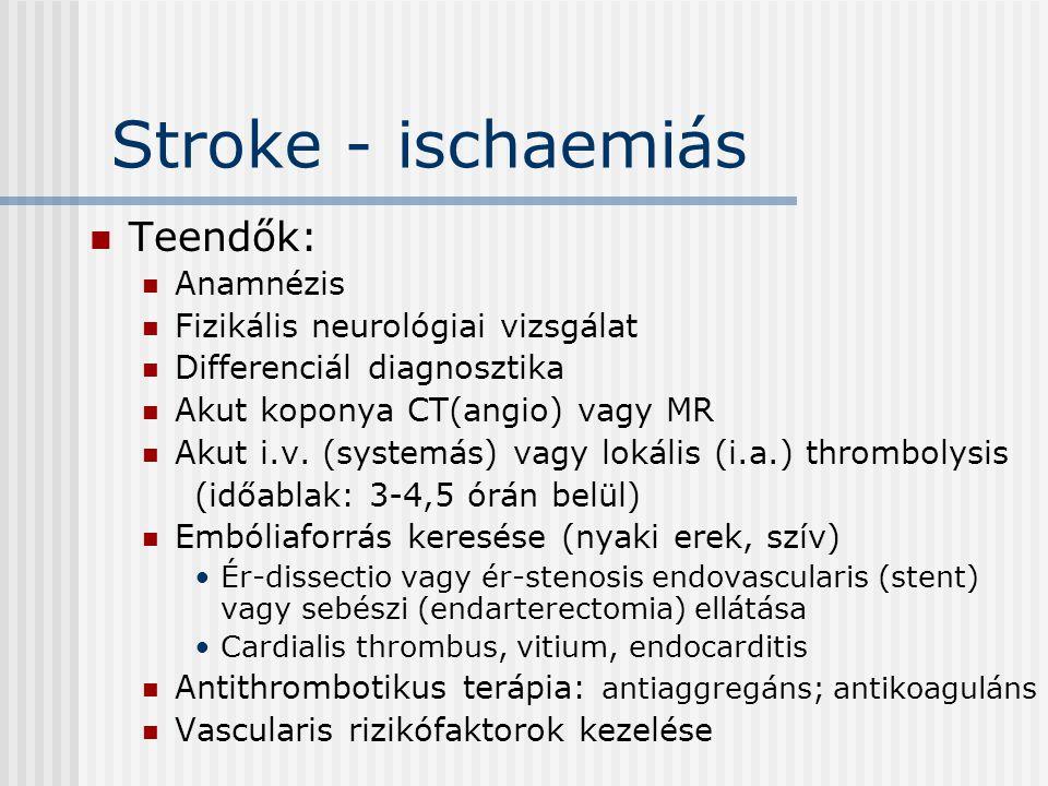 Stroke - ischaemiás Teendők: Anamnézis Fizikális neurológiai vizsgálat