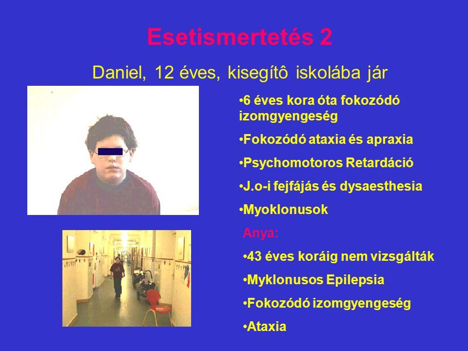 Daniel, 12 éves, kisegítô iskolába jár