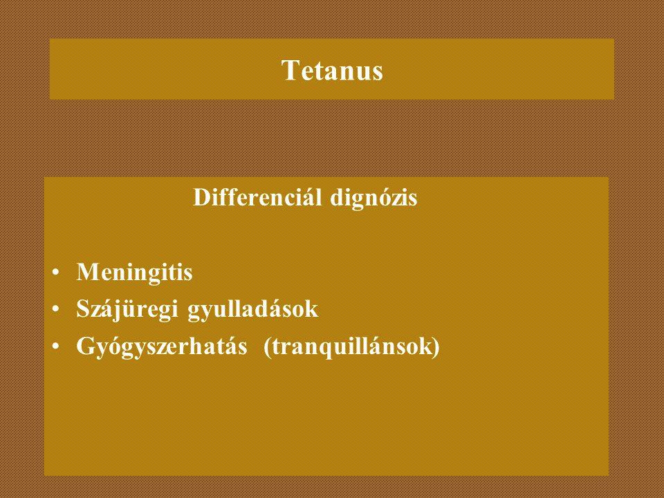 Tetanus Differenciál dignózis Meningitis Szájüregi gyulladások