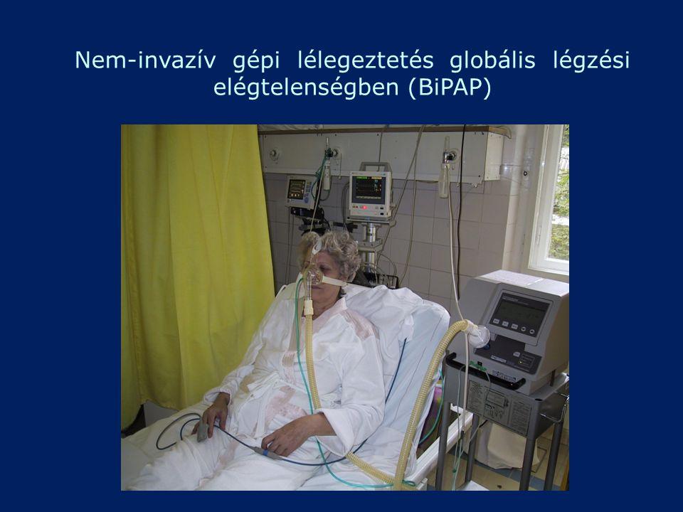 Nem-invazív gépi lélegeztetés globális légzési elégtelenségben (BiPAP)