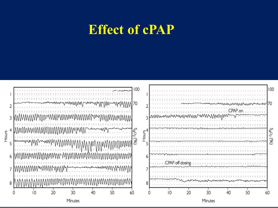 Effect of cPAP
